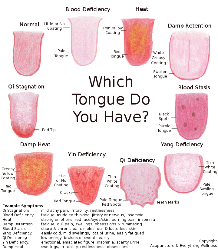 Tongues & symptoms they represent