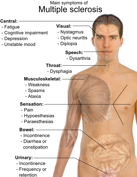Some common symptoms of multiple sclerosis.