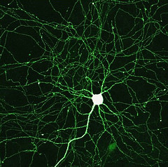 An image of a neuron