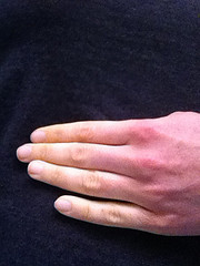A picture of Raynaud's phenomenon.