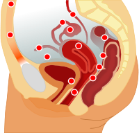 A photo of places where endometrium commonly grows outside the uterus.