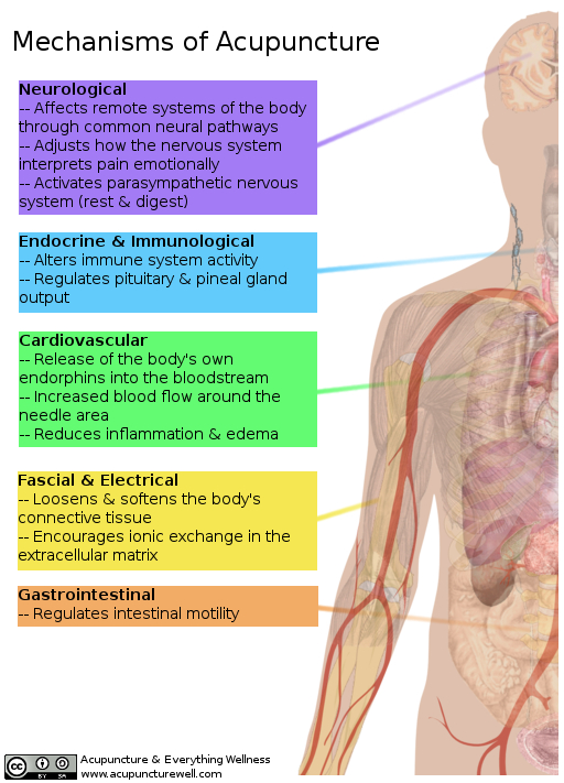 An image showing the many mechanisms of acupuncture.