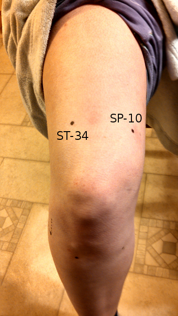 The acupuncture points Stomach-34 & Spleen-10
