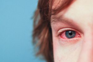 Itchy eyes are a common allergy symptom.